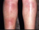 panniculitis (1)